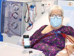 A patient using the artificial pancreas (University of Cambridge)