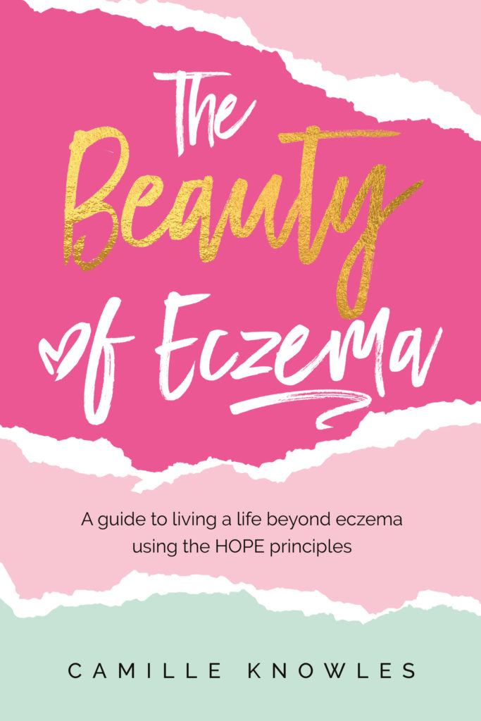 The Beauty of Eczema by Camille Knowles