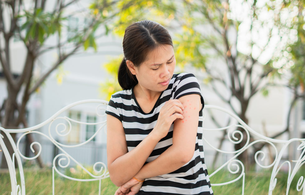 An Asian girl who has been bitten by an insect on his arm and causes a burning sensation in her front garden. Health care and medical concepts;