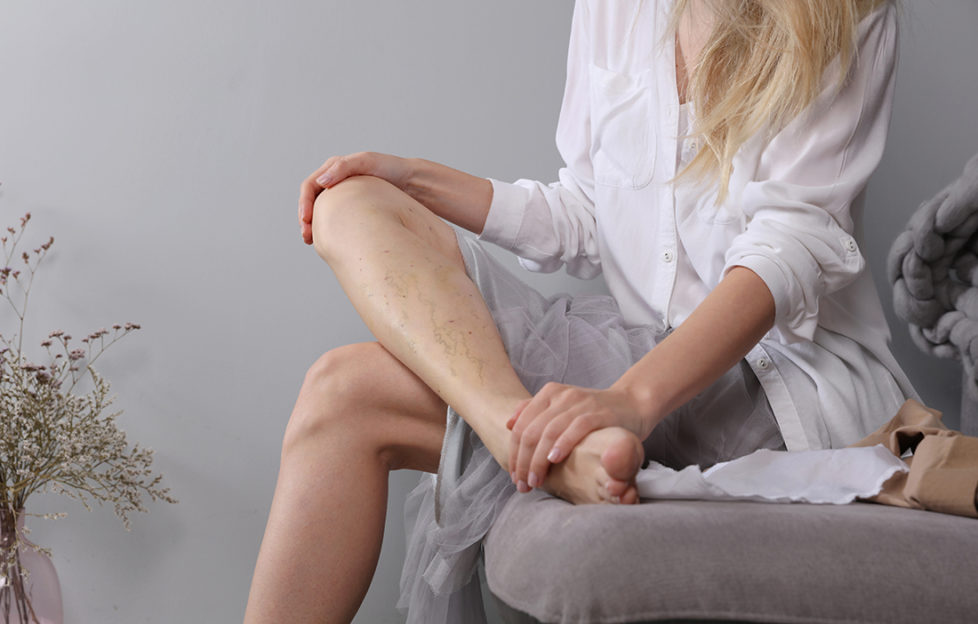 Varicose vein laser surgery recovery and prevention, Compression Stockings Thigh
