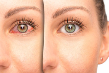 Red eye before and after use of eyewash;