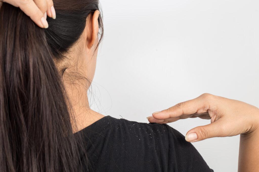women having dandruff in the hair and shoulder;