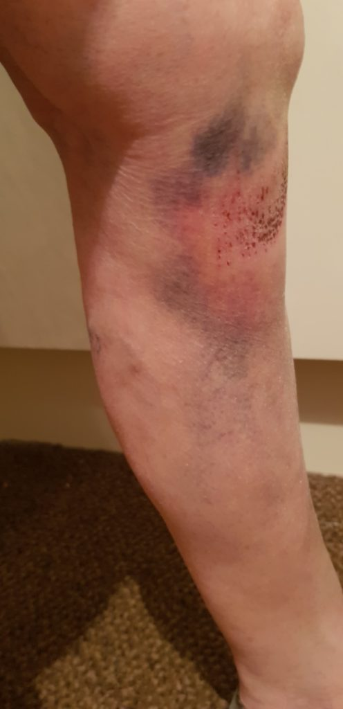 Local resident, Linda Mitchell suffered bad bruising to her leg after slipping into one of the drains. She still has scarring from the incident and her daughter, Jane, is considering putting in a claim against owners. Photograph: Jane Mitchell