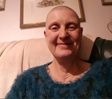 Jan Wolfe after her head shave for charity, saving koalas.