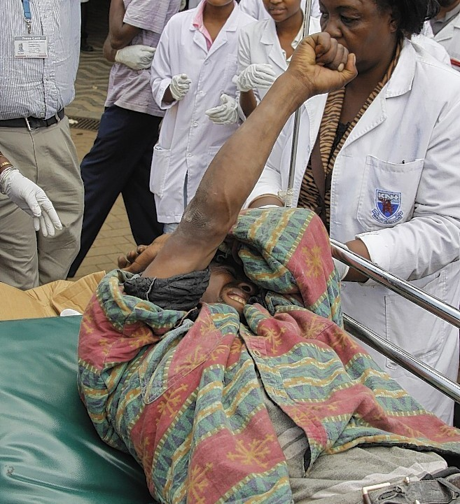 A man injured by one of the two blasts in central Nairobi arrives to be treated at Kenyatta National Hospital in Nairobi, Kenya