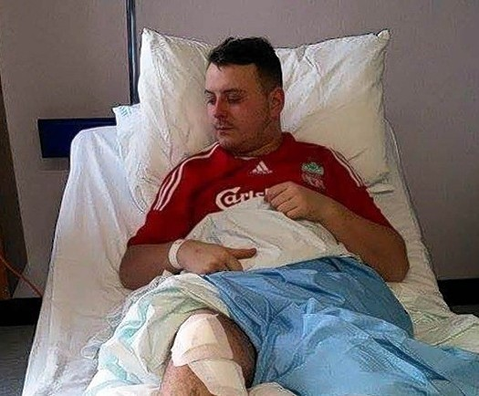Mr Mackay has been left nursing his leg in hospital