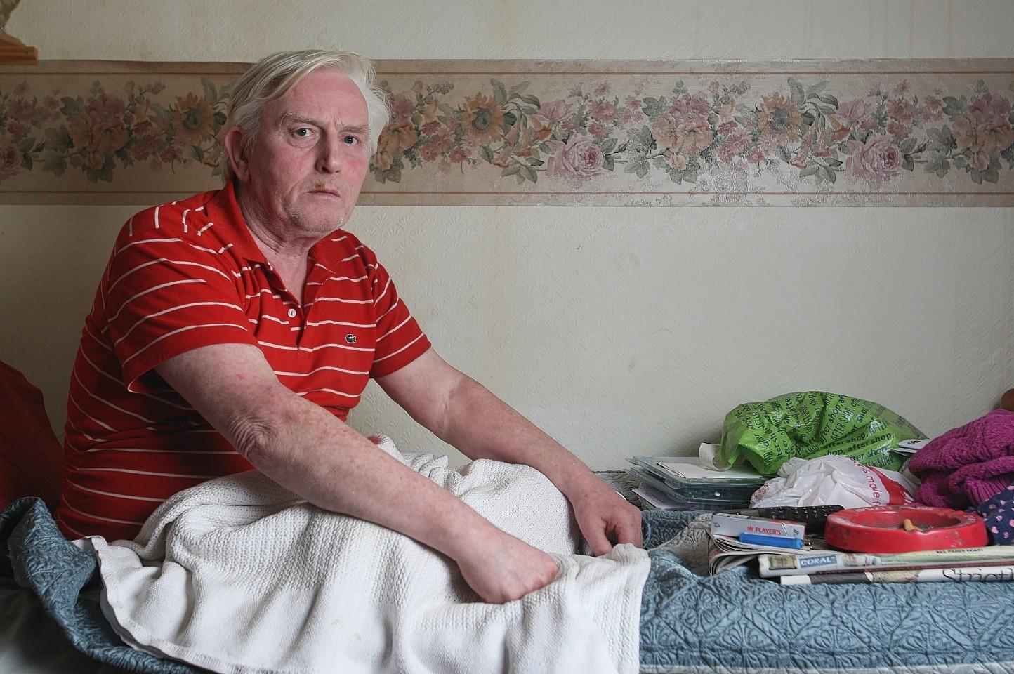 Tom Burns, who has had both legs amputated