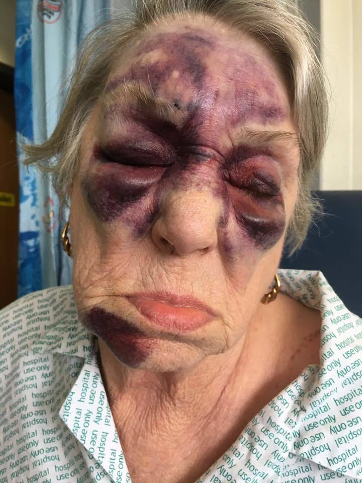 Jill Symmonds was left with horrific bruises across her face
