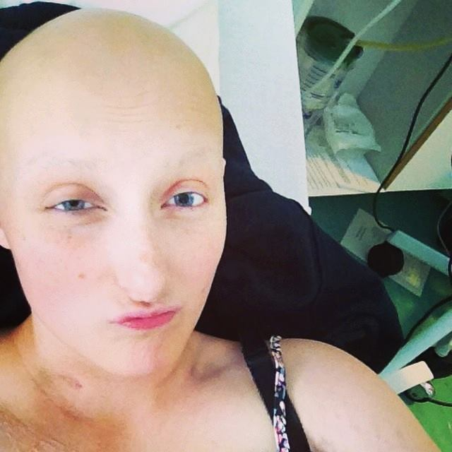 Emily has gone through endless chemotherapy and is proud of her body