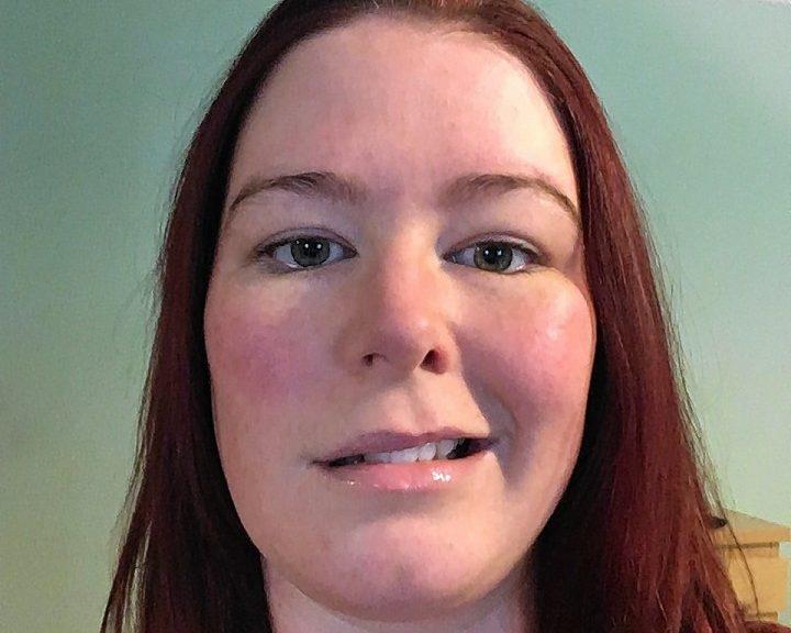 Raigmore nurse Ruth Ferguson is keen to raise awareness of Bell's palsy.