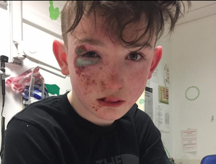 Shane Flower, 12, sustained serious burns to his face while out with his friend in Northfield.