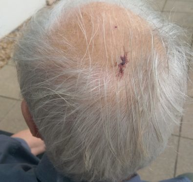 The pensioner was left with a three-inch cut on his head.