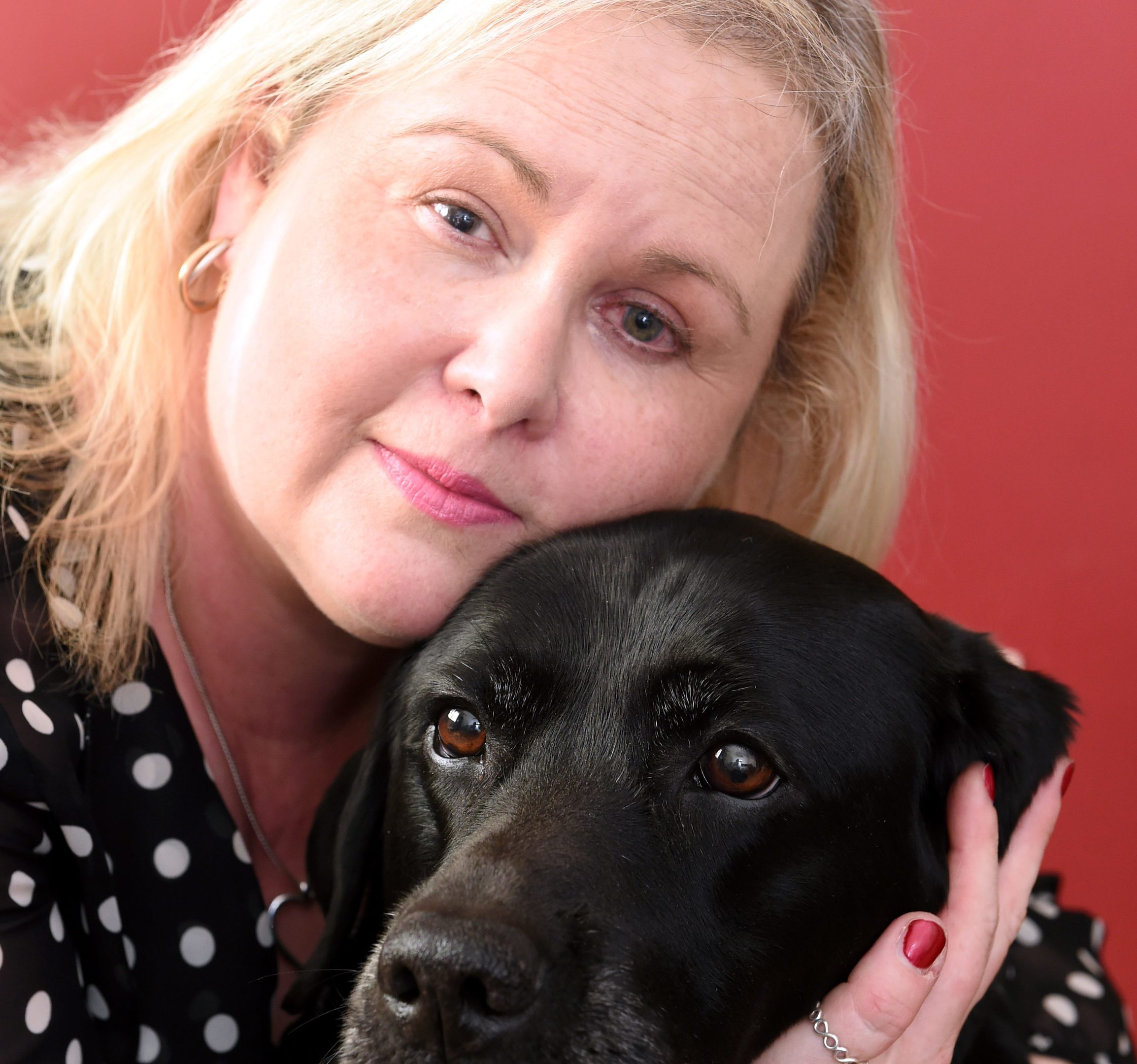 Partially-sighted Andrea Barclay and her dog Cara, who was attacked in the street by another dog.  Picture by Jim Irvine