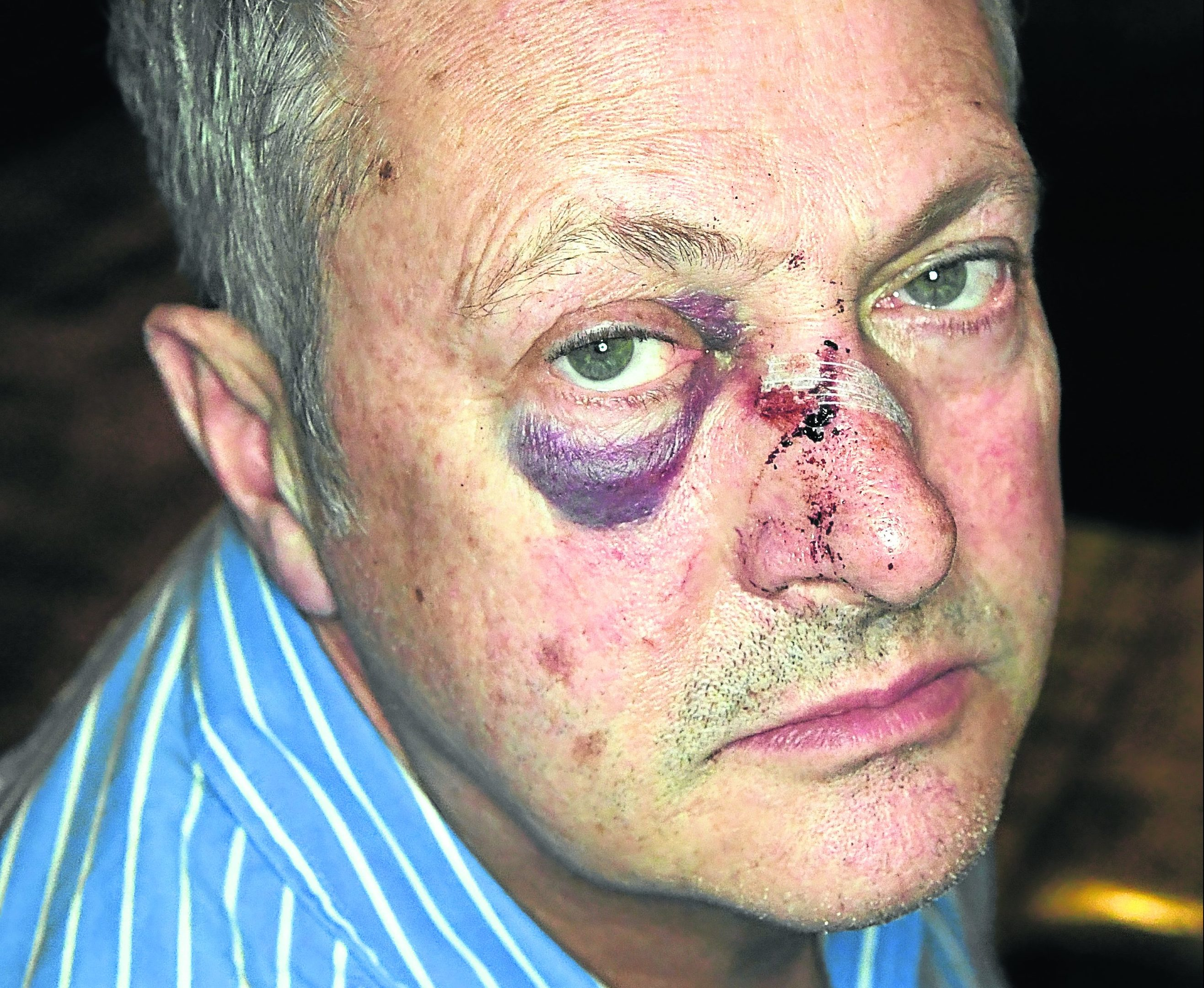 Chef Nick Nairn was attacked on Union Street  walking home from his cook school. Picture by Kami Thomson