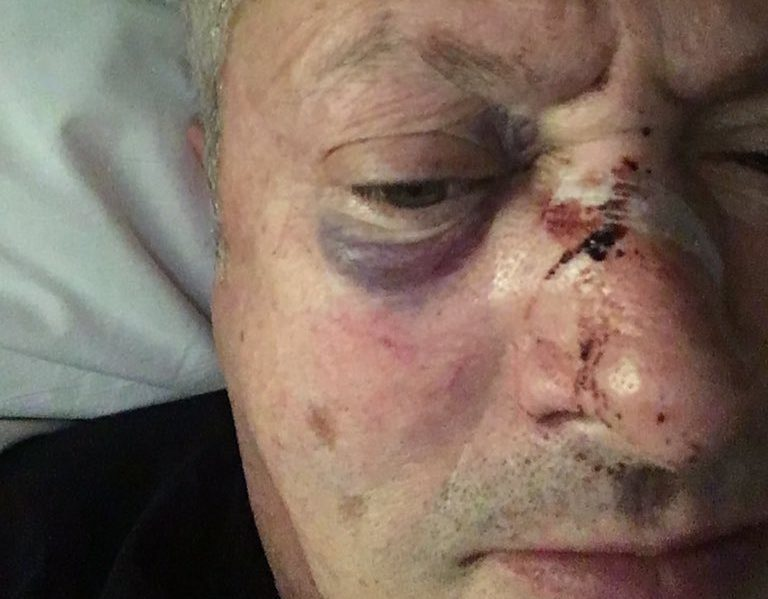 Nick Nairn shared this image of the injuries he sustained in the late night assault.