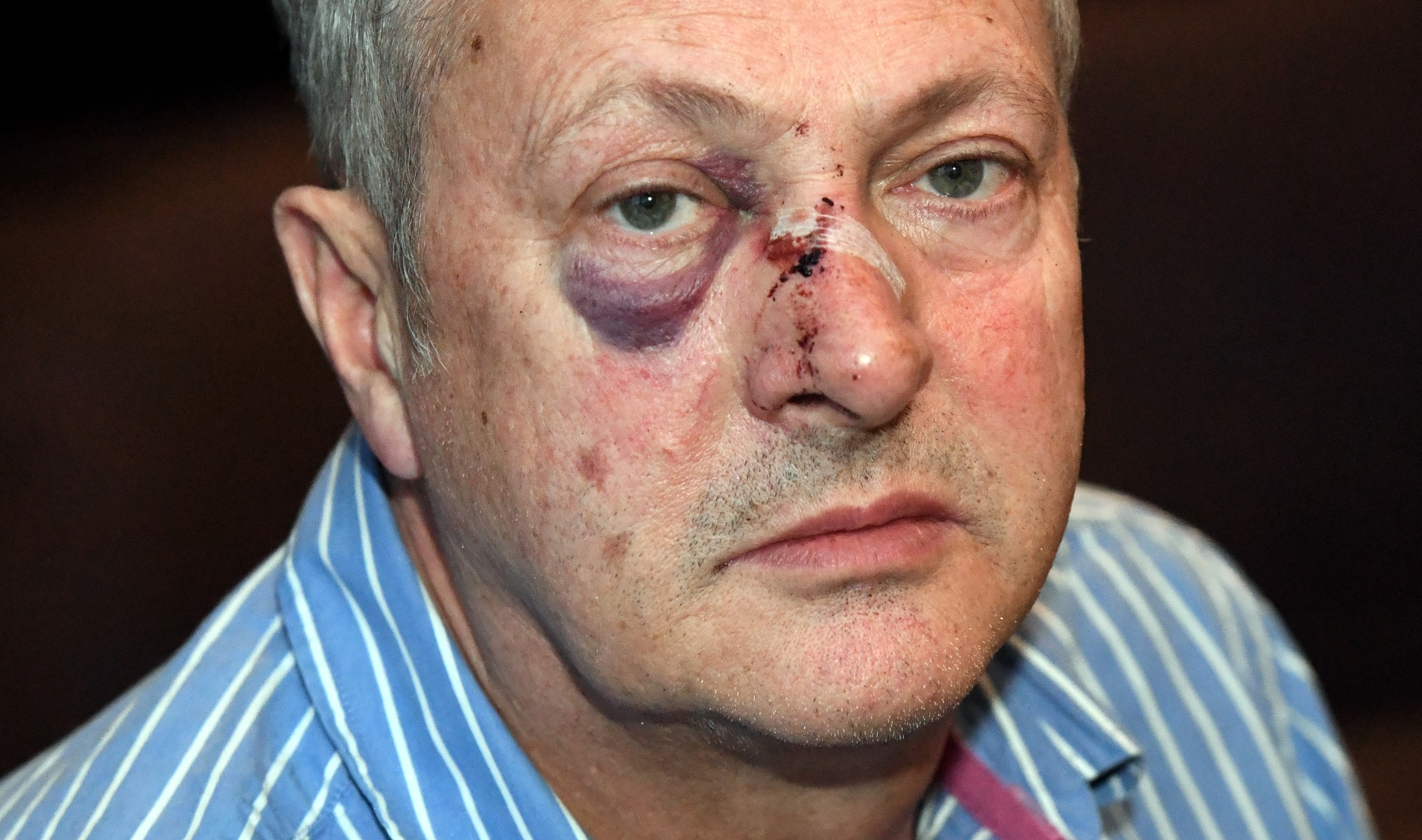 Chef Nick Nairn who was attacked on Union Street last night walking home from his cook school.