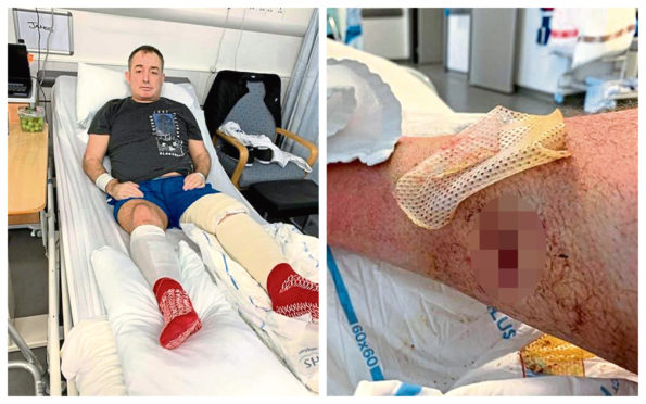 James Nicol was attacked by the dogs after entering a friend's flat.
