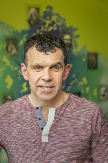 Sandy Patience is one of just nine Scots undergoing the clinical trial aimed at halting the progress of Huntington's disease