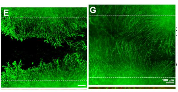 Neuronal growth before, left, and after, right, the team's treatment