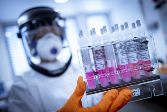 A research assistant holds coronavirus test samples in her hands