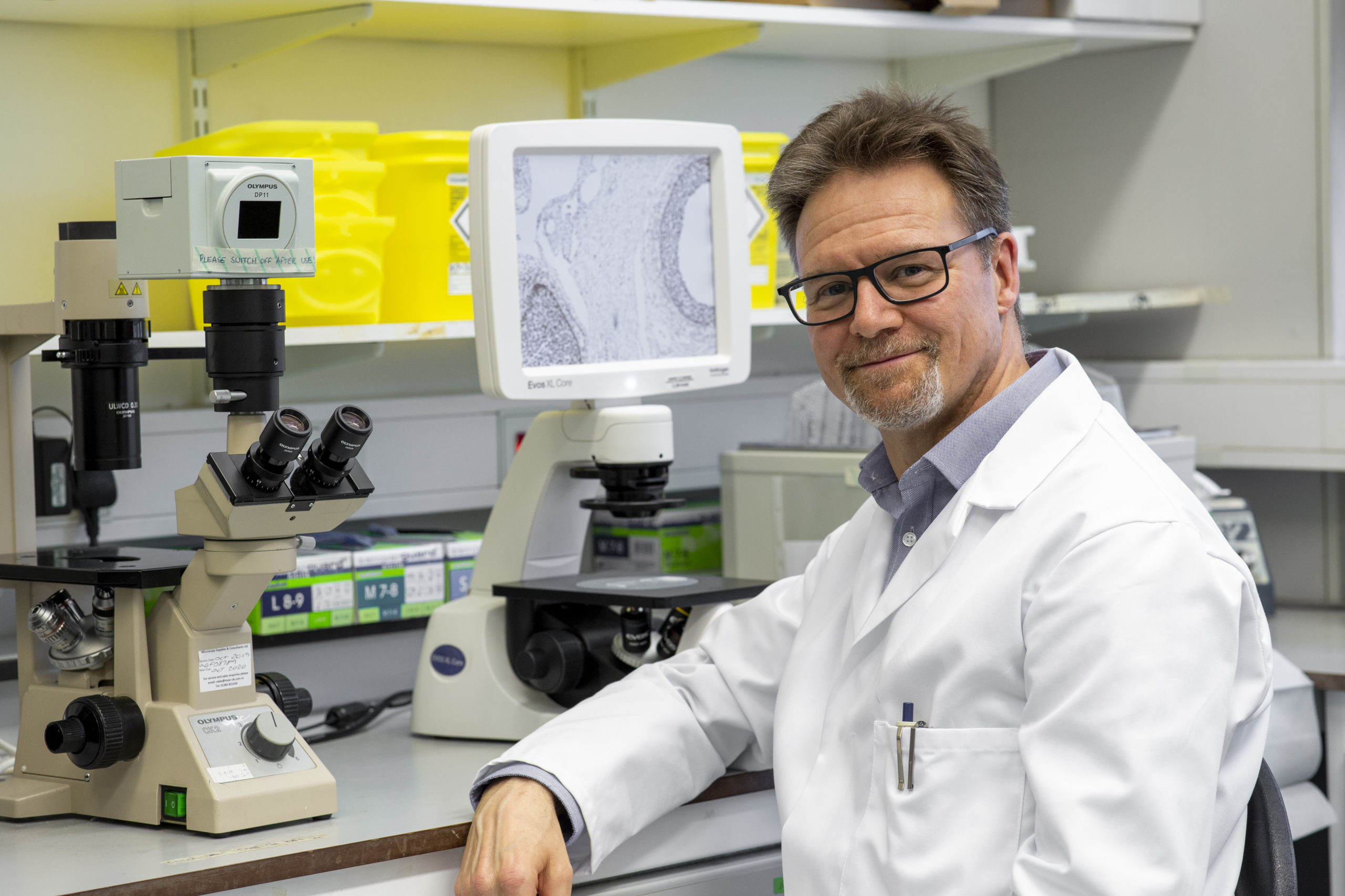 Professor Iain McEwan of Aberdeen University has been working on a new drug to tackle prostate cancer.
