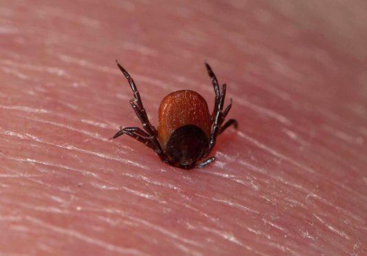Tick (Acarina sp.) adult, feeding, on human skin