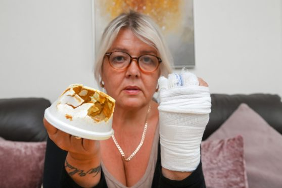 Arleen Mcdonald with her bandaged hand and the tub of curry sauce. Picture by Kenny Elrick