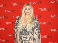 Kesha vowed to 'love myself' after posting a makeup-free selfie showing off her freckles (PBG/PA)