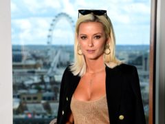 MIC's Olivia Bentley on cruel retort from ex-boyfriend over her alopecia (Ian West/PA)