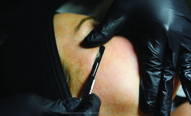 Featured Image for SWD Tries... Dermaplaning at Love Those Lashes, Glasgow