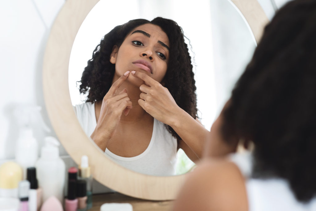 Maskne: Face mask acne