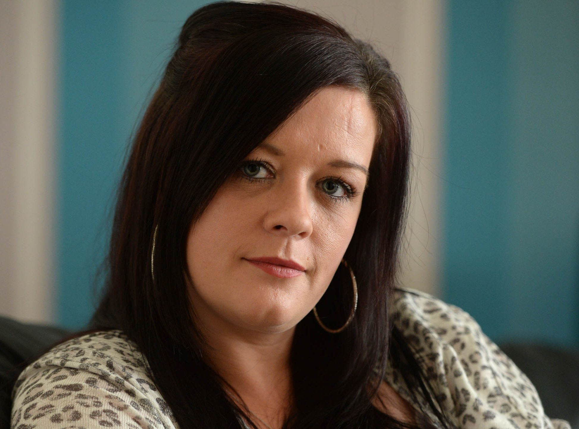 Donna Speirs, 33, from Greenock, who suffered a horrific at the hands of her partner Myles Leyden, 27 (James Chapelard/SWNS)