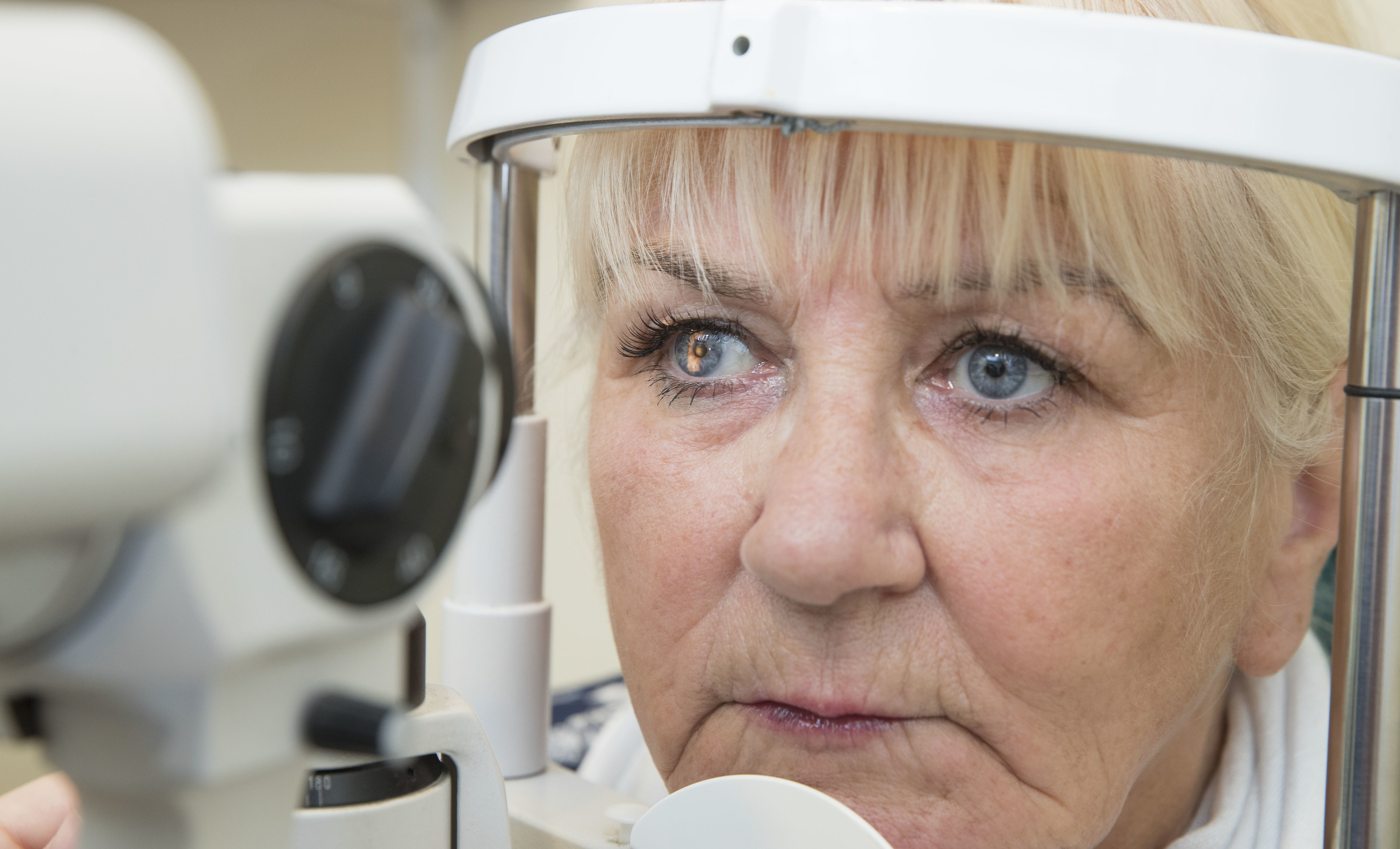 Maureen Afaty had had no idea she had suffered a stroke until her eye appointment