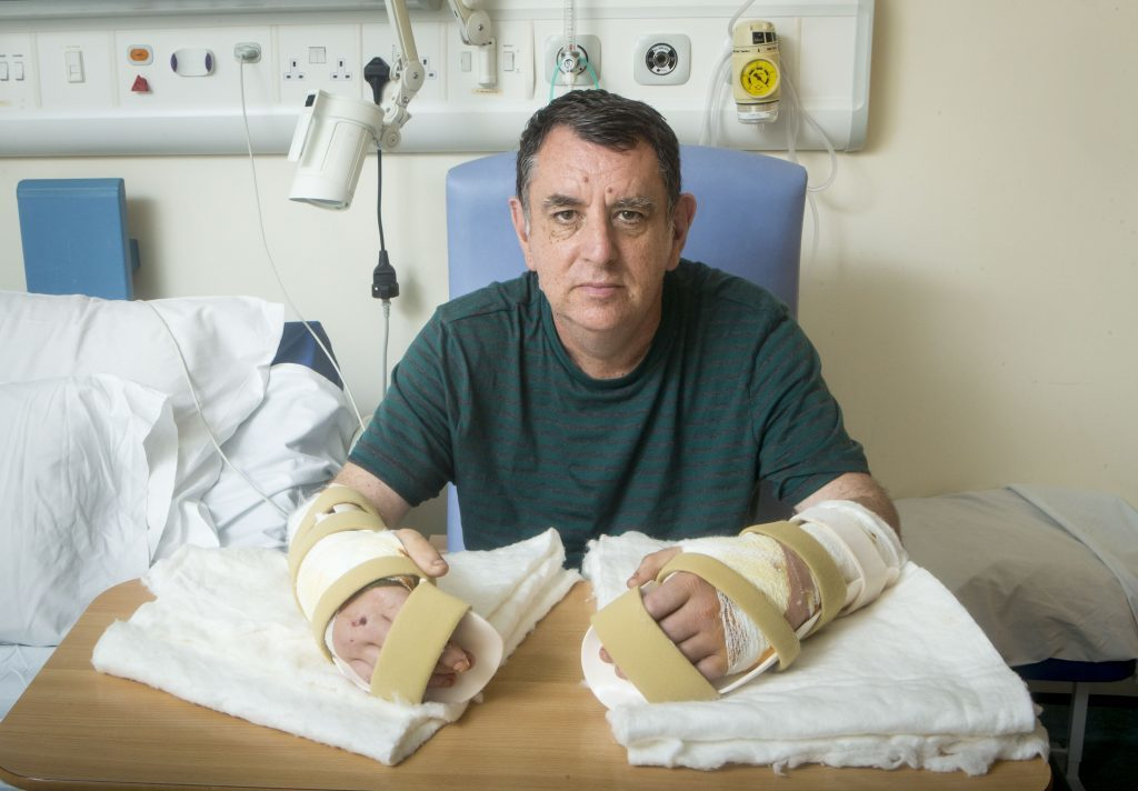 The UK's first double hand transplant patient Chris King, from Doncaster (Danny Lawson / PA Wire/PA Images)