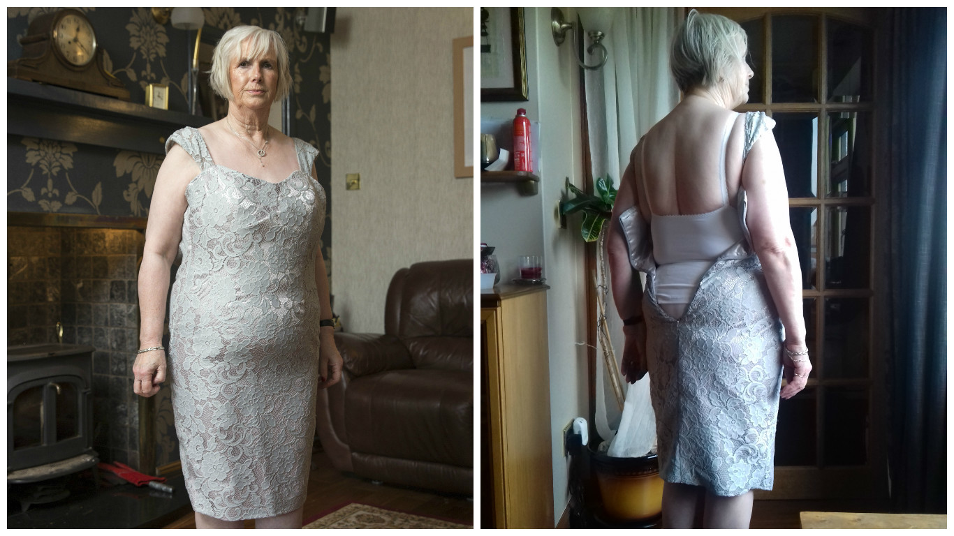 Audrey's Shillas dress wasn't even close to the size that she'd ordered (Ross Johnston/Newsline Media)