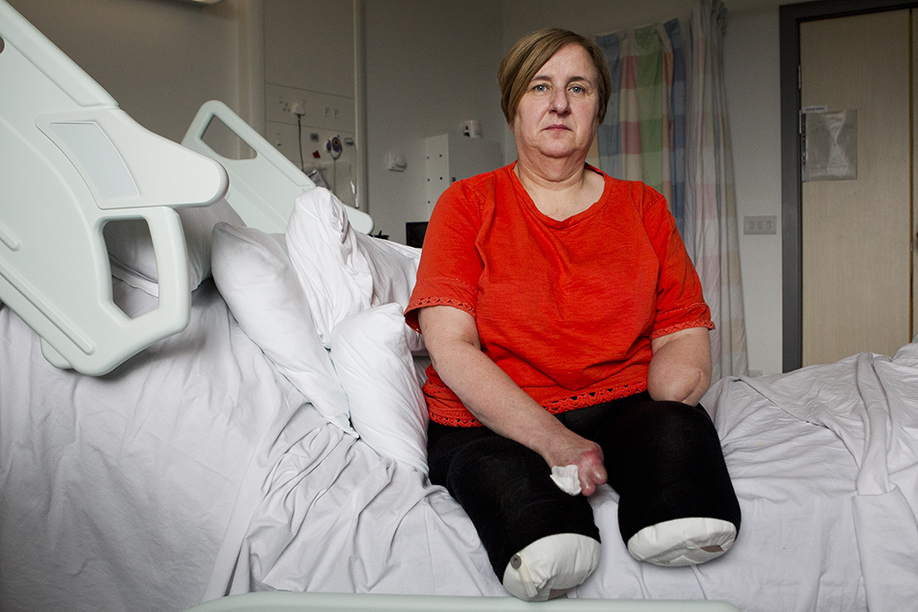 Marguerite Henderson, who has had both her feet and hands amputated (Andrew Cawley / DC Thomson)