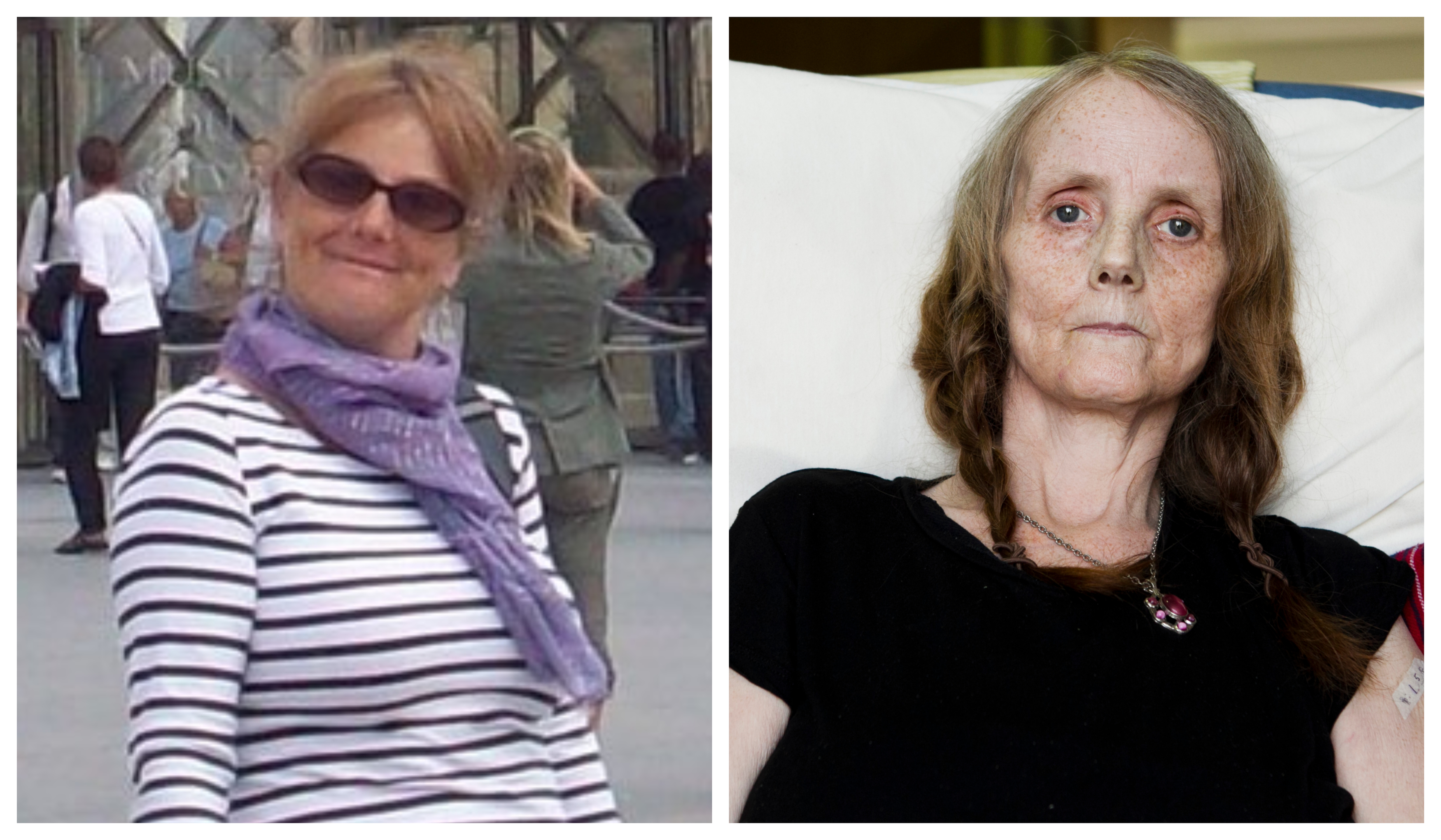 Michelle McDougall on a trip to Paris in 2008 before her diagnosis with a rare cancer (left) and last week in a hospice