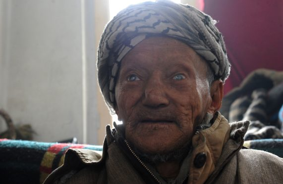 A leprosy patient sits in his room at the leprosy hospital in downtown Srinagarto.