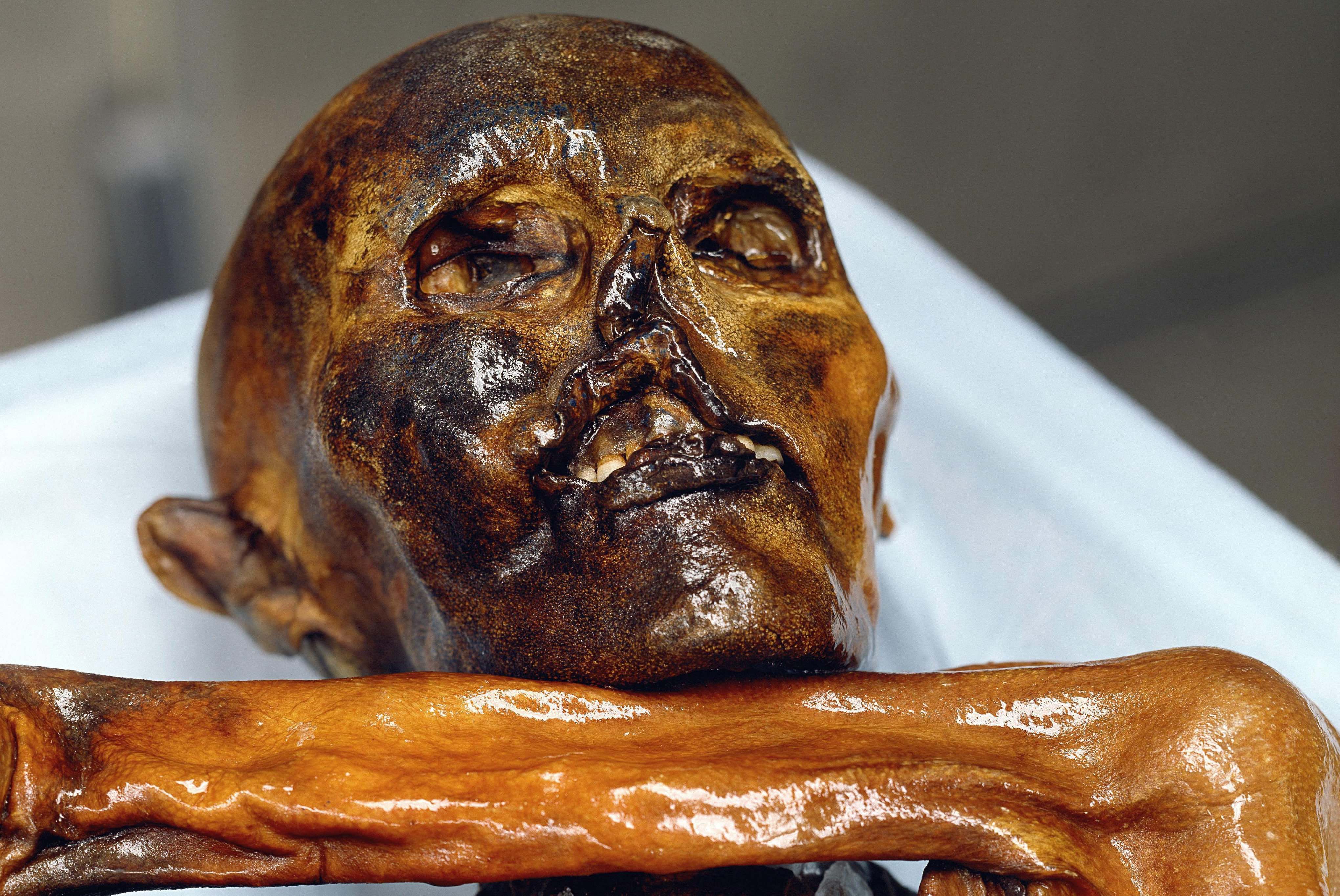 A 5,300-year-old mummified corpse, known as Otzi, found in the Alps