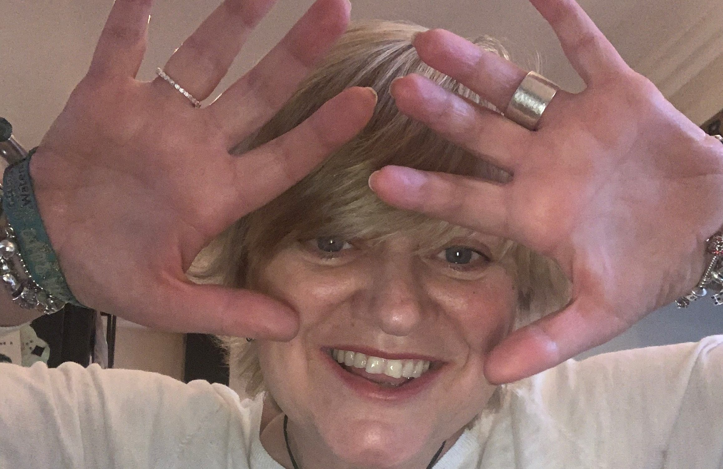 Cor celebrates the first anniversary of her hand transplant