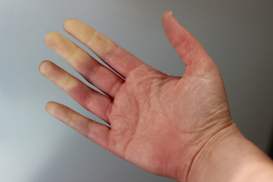 Raynaud's is a condition that affects blood circulation causing some areas of the body, such as fingers and toes, to feel painfully numb or freezing cold in response to changes in temperature
