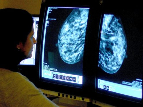 A consultant analysing a mammogram. Breast cancer screening for women in their 40s could save up to 400 lives a year without a significant increase in over-diagnosis, scientists have said.