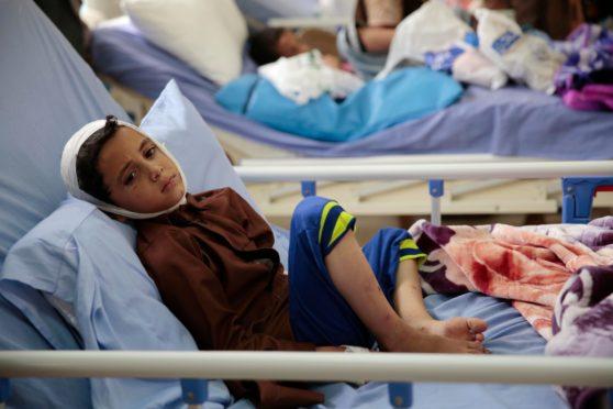 A boy hurt in 2018 bombing of bus in Yemen