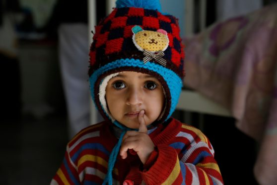 A Yemeni girl looks on as her brother is treated for malnutrition at a Sana'a hospital in January.