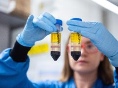 While coronavirus vaccines have arrived, the issue of long Covid is an emerging problem for health officials and governments worldwide (John Cairns/University of Oxford/PA)