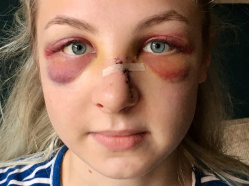 Pc Maddie Hayes was forced to take three months off work following the attack (Leicestershire Police/PA)