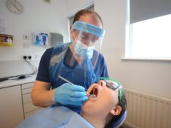 Everyone in Scotland under the age of 26 will now receive free dental treatment on the NHS, the Scottish Government has confirmed (Liam McBurney/PA)