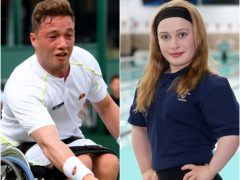 Alfie Hewett, left, and Ellie Robinson, right, each have Perthes disease (PA)