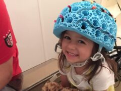 A young girl wearing the the world's first wearable MEG (magnetoencephalography) brain scanning system (Handout/PA)