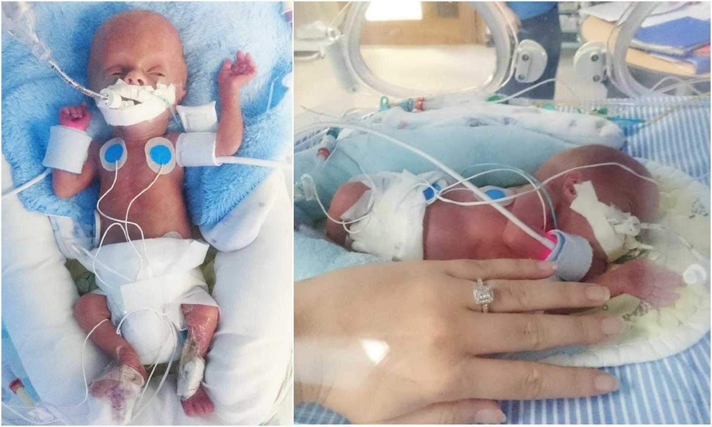 """Henry spent five months """"battling to survive"""" in hospital after he was born."""